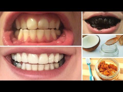 Como Clarear Os Dentes Em Casa Aprenda 10 Receitas Naturais